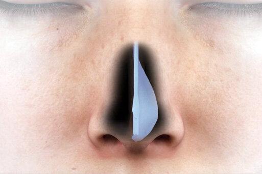 نکته بهداشتی: انحراف تیغه بینی