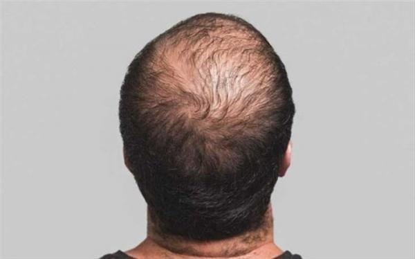 با این روش از ریزش مو جلوگیری کنید